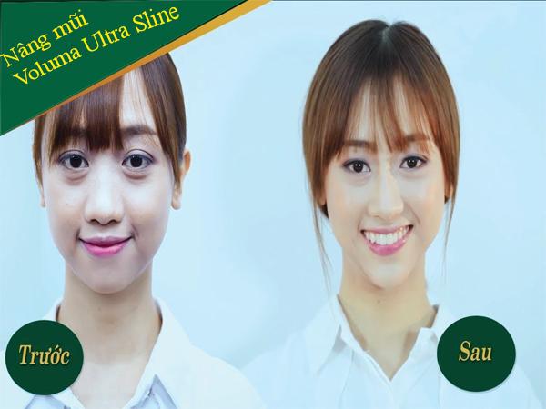 Hình ảnh trước và sau khi nâng mũi không phẫu thuật Voluma Ultra Sline